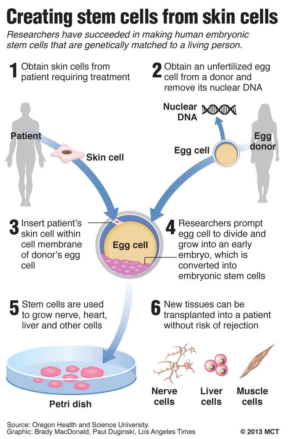 Graphic diagrams how researchers have created human stem cells from human skin cells; for the first time, scientists have created human embryos that are genetic copies of living people and used them to make stem cells. Los Angeles Times/MCT